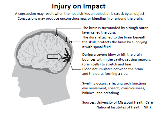 Concussion - Memory Loss Cause - MemoryHealthCheck