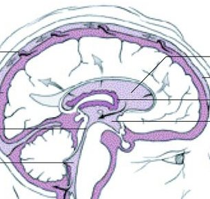 normal-pressure-hydrocephalus-memory-loss1