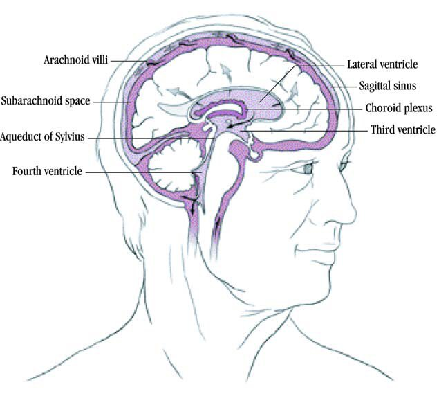 normal-pressure-hydrocephalus-memory-loss